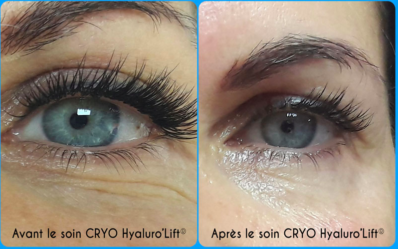 cryodermie hyaluro lift